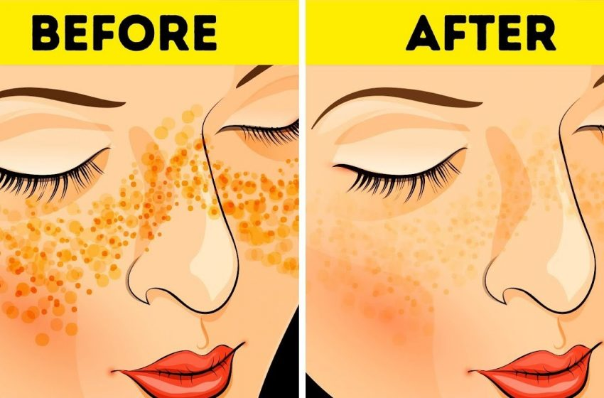 4 Simple and Effective Methods to Clear Up Acne Scars