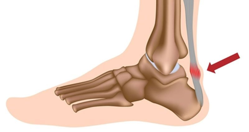 Why Pain in the Ankle Might Be the Achilles Tendon