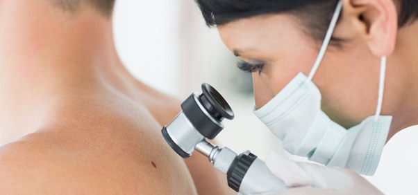 Melanoma Skin Cancer: Stages, Symptoms, Diagnosis, And Treatments