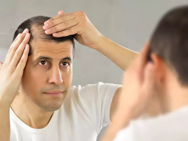 Hair Transplant- An Appropriate Solution For Baldness