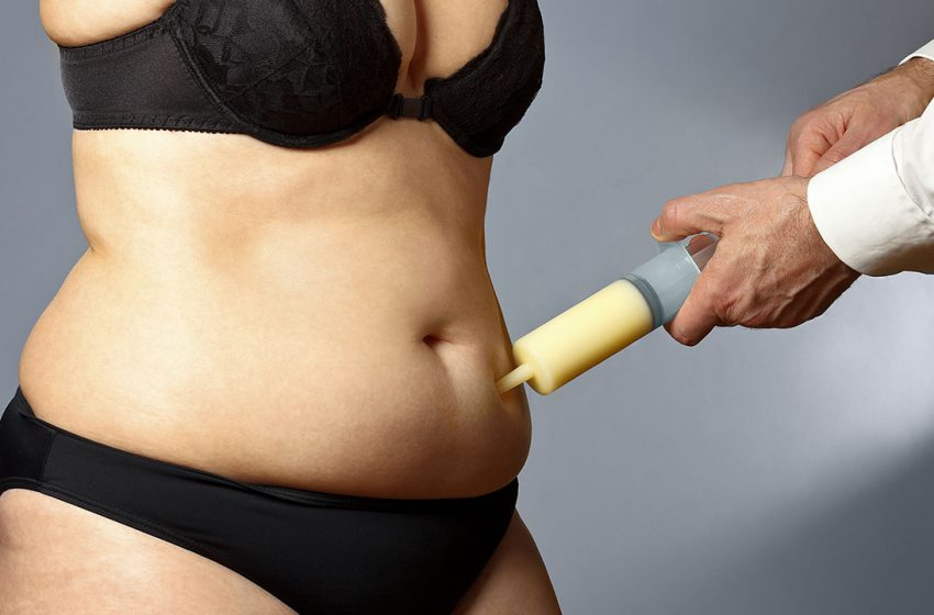 Fat Transfer Procedure And What You Need To Know