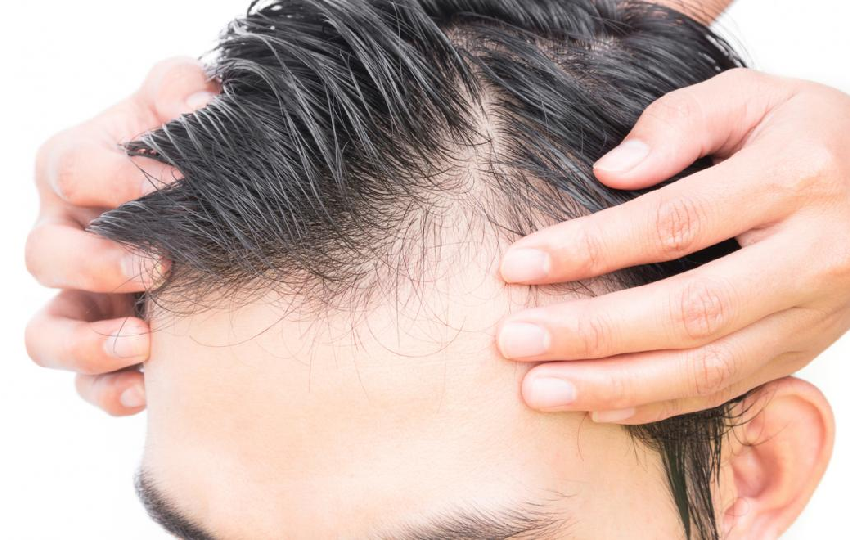 What are the causes of male pattern baldness?